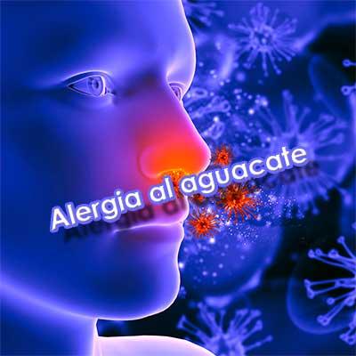 alergia al aguacate